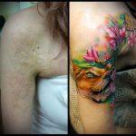 фото Тату на шраме, рубце, следе (tattoo) (значение) - пример рисунка - 001 tatufoto.com
