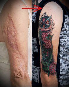 фото Тату на шраме, рубце, следе (tattoo) (значение) - пример рисунка - 003 tatufoto.com