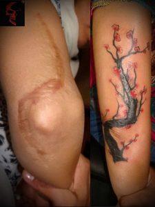 фото Тату на шраме, рубце, следе (tattoo) (значение) - пример рисунка - 014 tatufoto.com