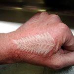 фото Белые тату от 19.02.2018 №102 - White Tattoo - tattoo-photo.ru