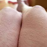 фото Белые тату от 19.02.2018 №161 - White Tattoo - tattoo-photo.ru