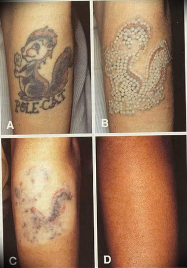 Удаление тату лазером - Laser tattoo removal - фото 1