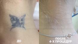 Лазерное удаление татуировок в Москве - фото